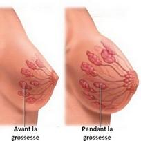 Les tétines après la plastique de la poitrine
